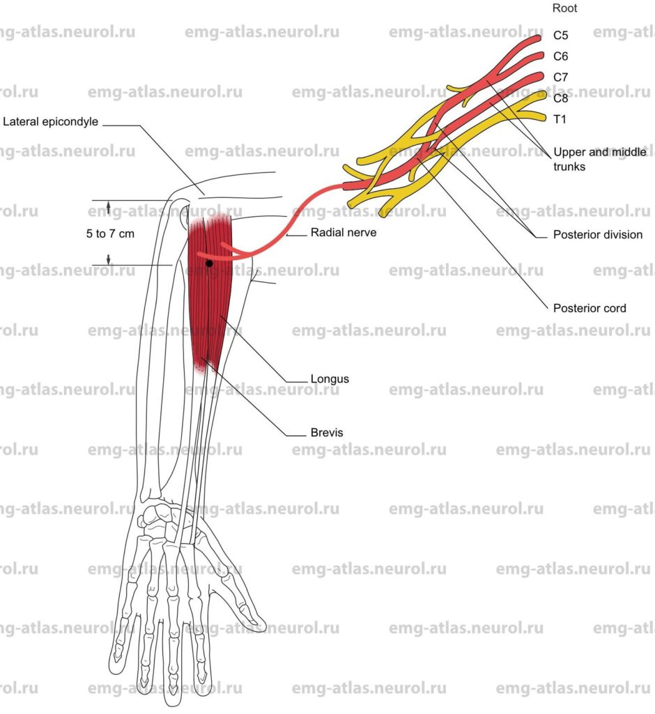 Extensor Carpi Radialis, Longus and Brevis