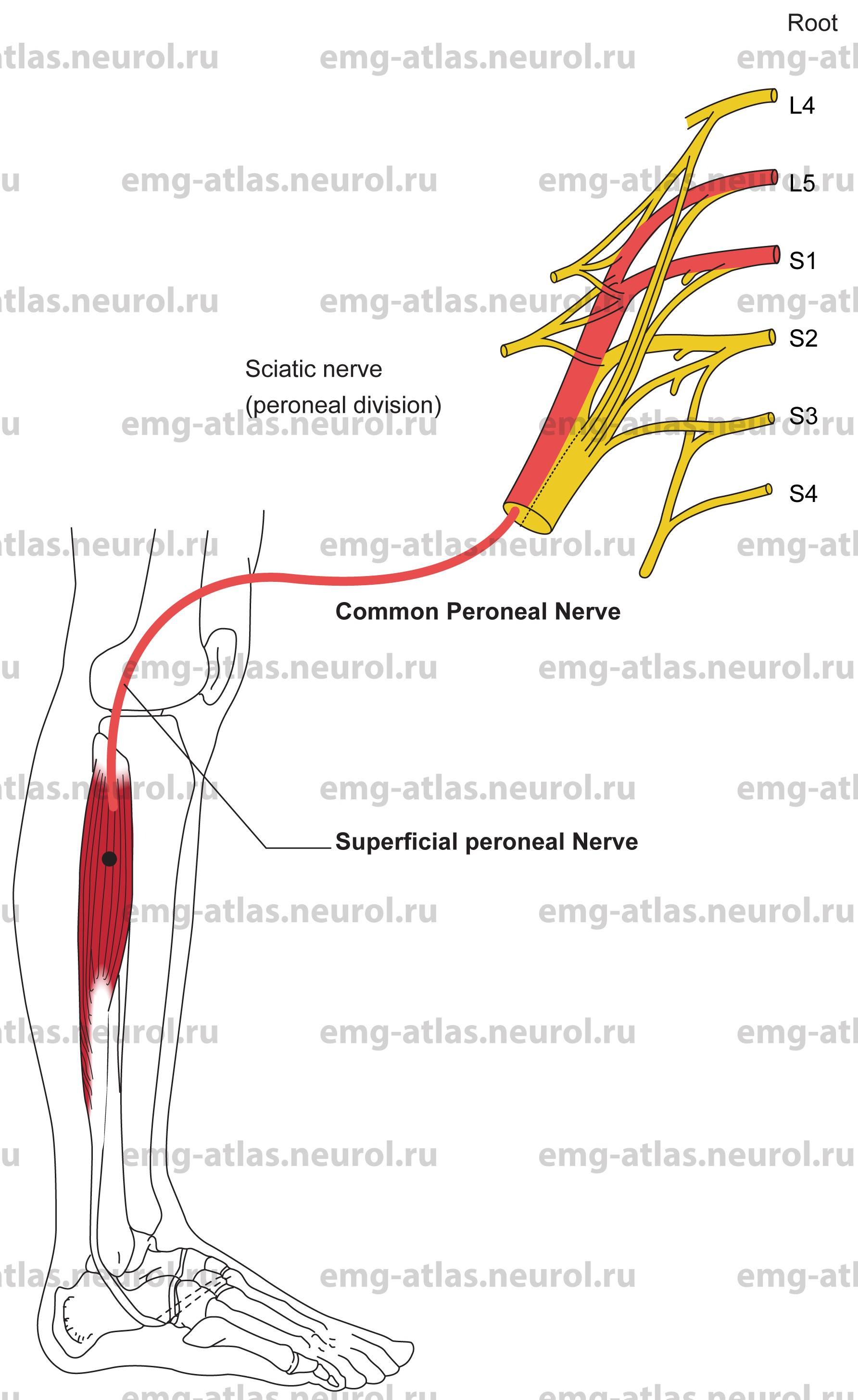 Online Atlas of Electromyography